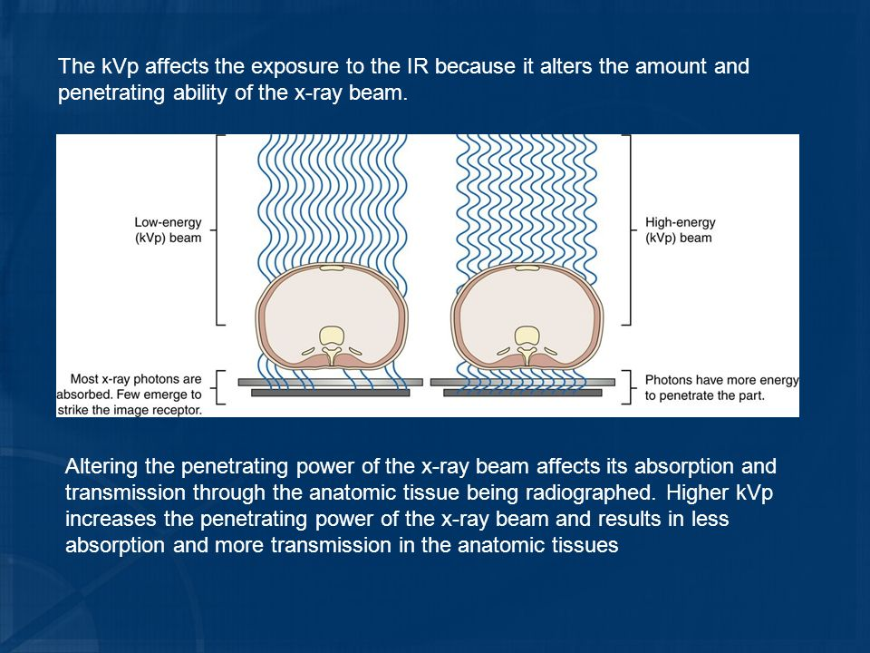 The kVp affects the exposure to the IR because it alters the amount and penetrating ability of the x-ray beam.