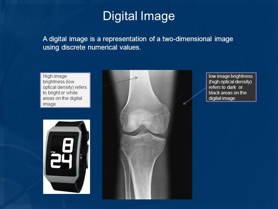 Digital Image A digital image is a representation of a two-dimensional image using discrete numerical values.