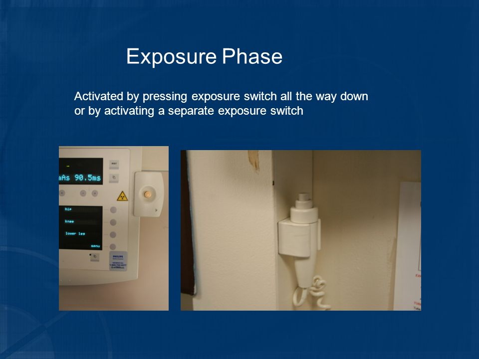 Exposure Phase Activated by pressing exposure switch all the way down or by activating a separate exposure switch.