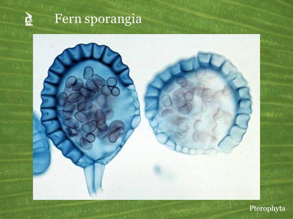 A Fern sporangia Pterophyta