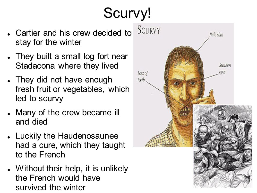 Scurvy! Cartier and his crew decided to stay for the winter