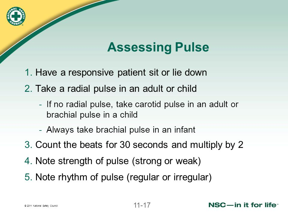 Assessing Pulse Have a responsive patient sit or lie down