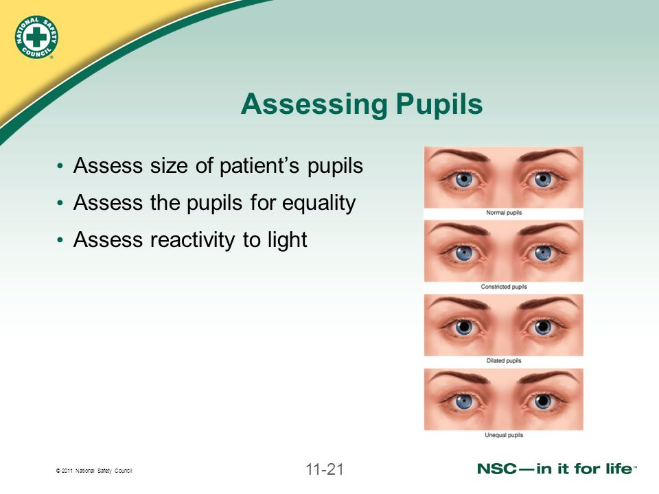 Assessing Pupils Assess size of patient's pupils