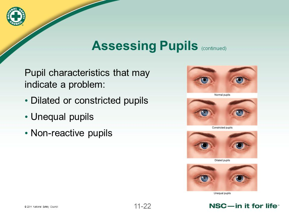 Assessing Pupils (continued)