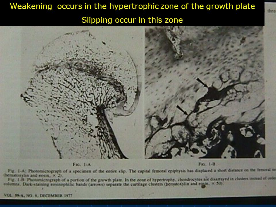 Weakening occurs in the hypertrophic zone of the growth plate