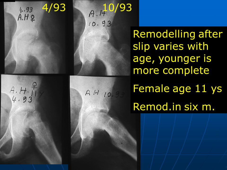 Remodelling after slip varies with age, younger is more complete
