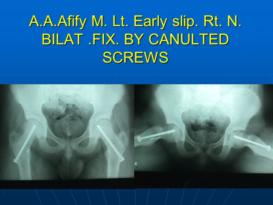 A.A.Afify M. Lt. Early slip. Rt. N. BILAT .FIX. BY CANULTED SCREWS