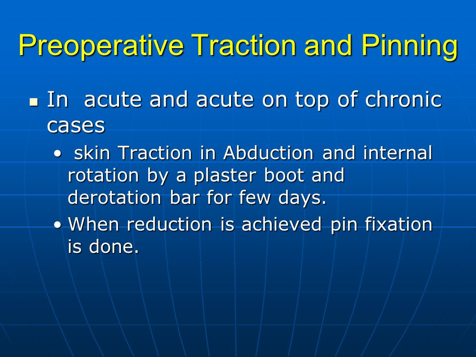 Preoperative Traction and Pinning