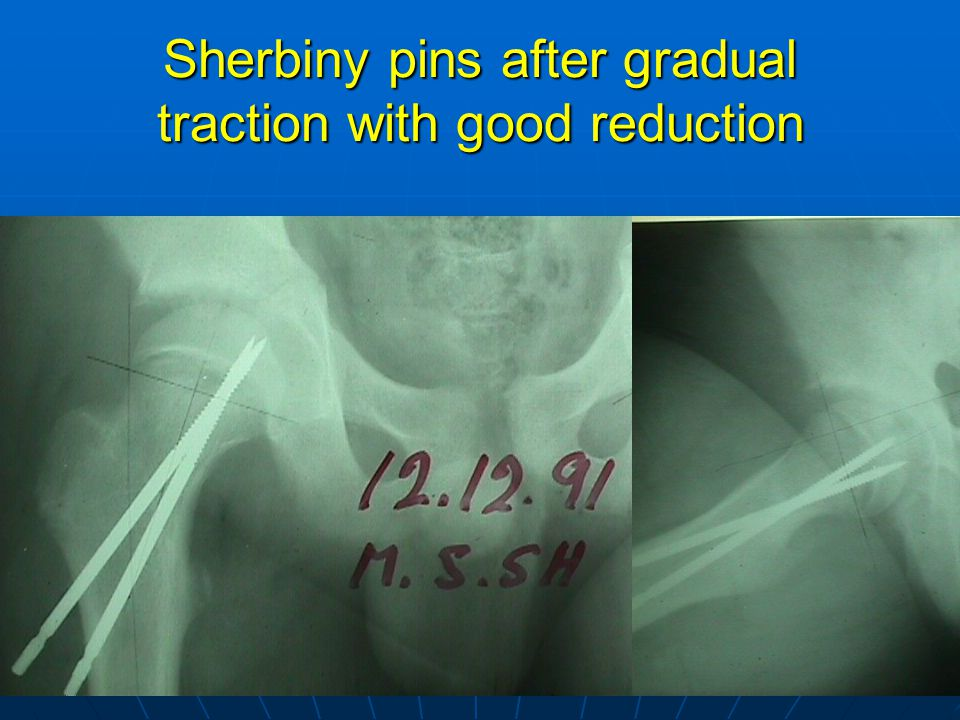 Sherbiny pins after gradual traction with good reduction