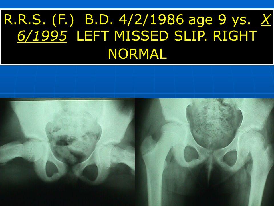 R. R. S. (F. ) B. D. 4/2/1986 age 9 ys. X 6/1995 LEFT MISSED SLIP