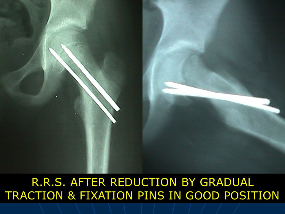 R.R.S. AFTER REDUCTION BY GRADUAL TRACTION & FIXATION PINS IN GOOD POSITION