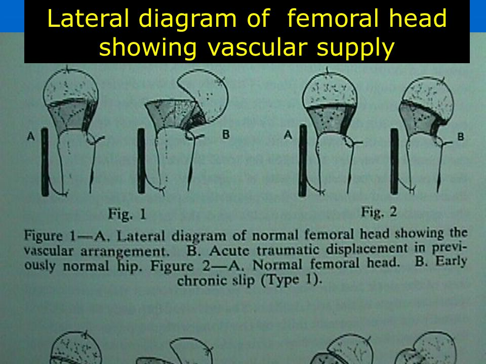Lateral diagram of femoral head showing vascular supply