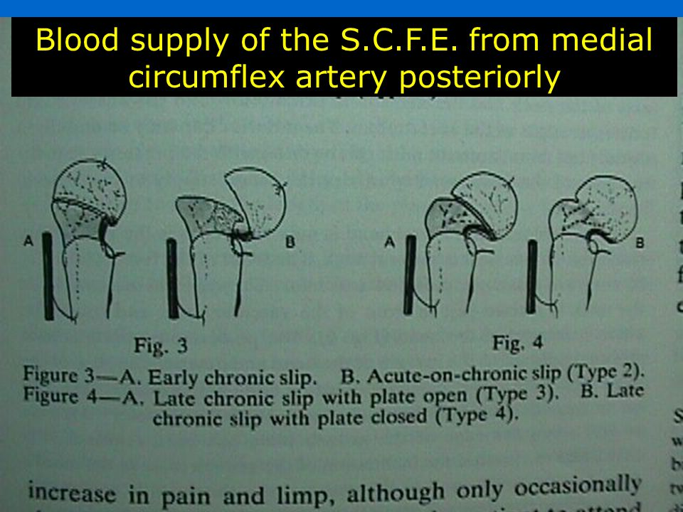 Blood supply of the S.C.F.E. from medial circumflex artery posteriorly