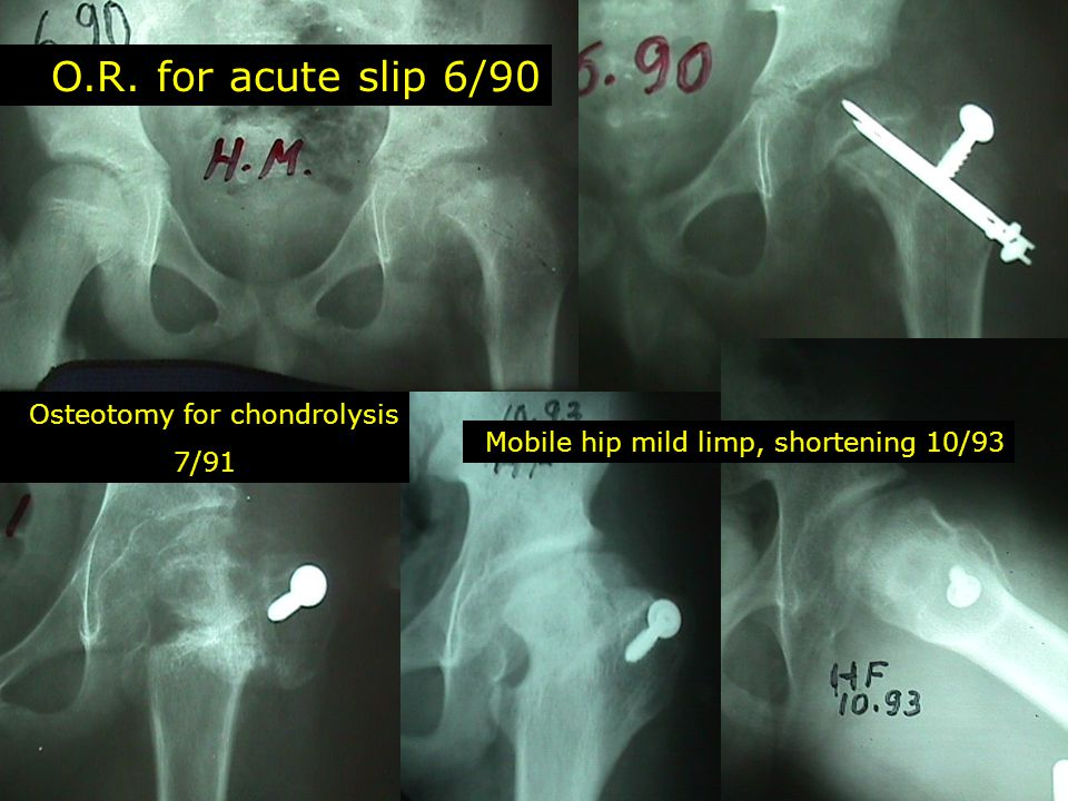 O.R. for acute slip 6/90 Osteotomy for chondrolysis 7/91