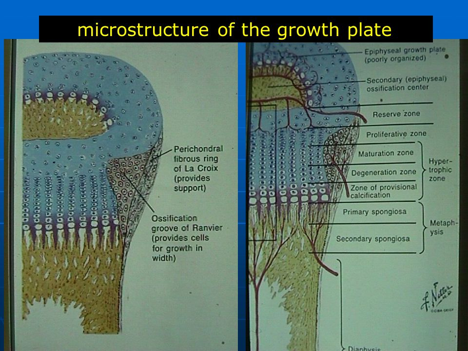 microstructure of the growth plate