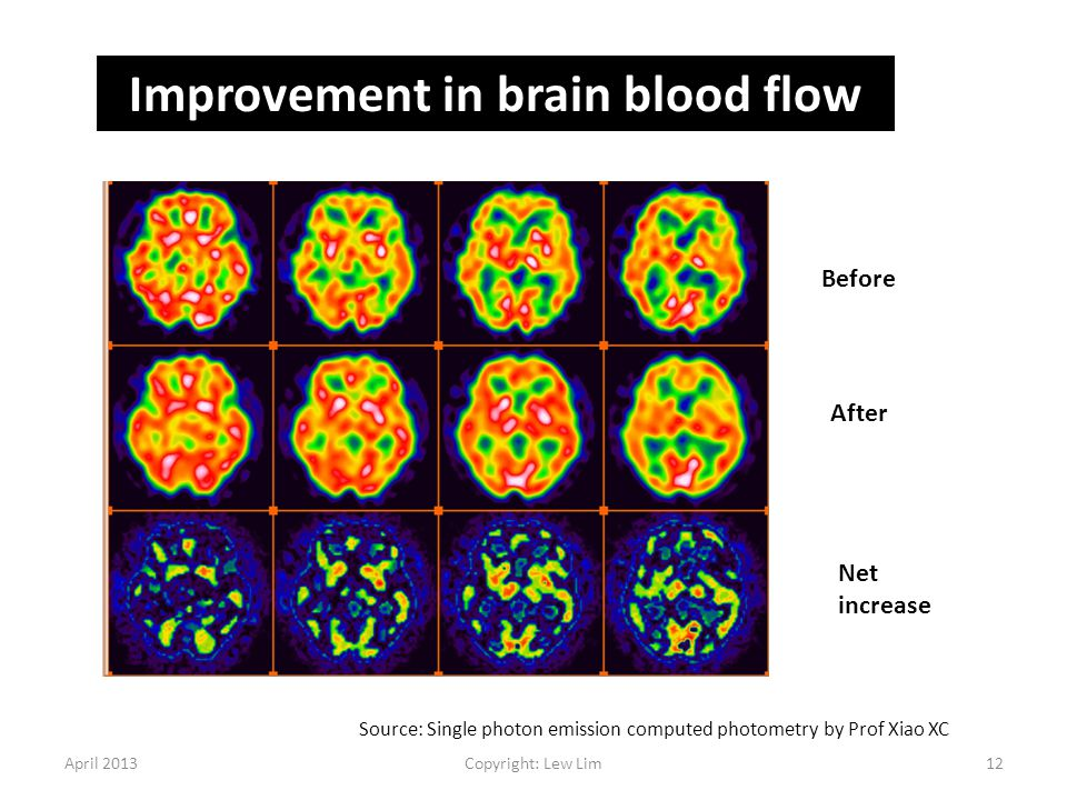 Improvement in brain blood flow