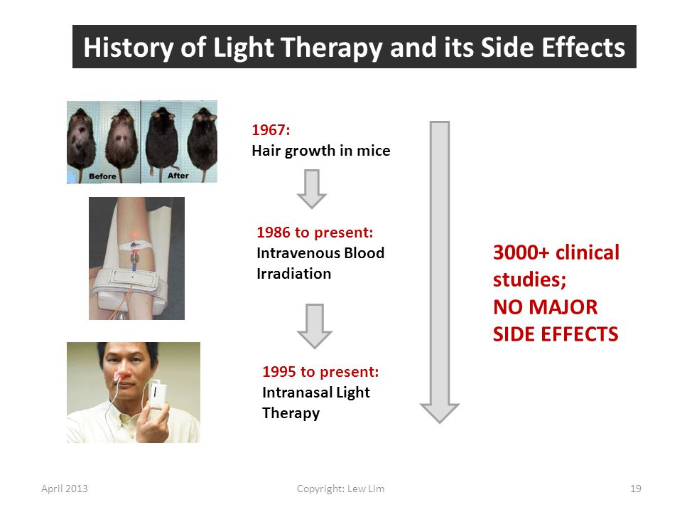 History of Light Therapy and its Side Effects