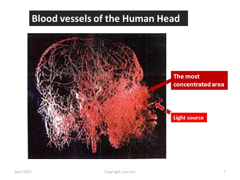 Blood vessels of the Human Head