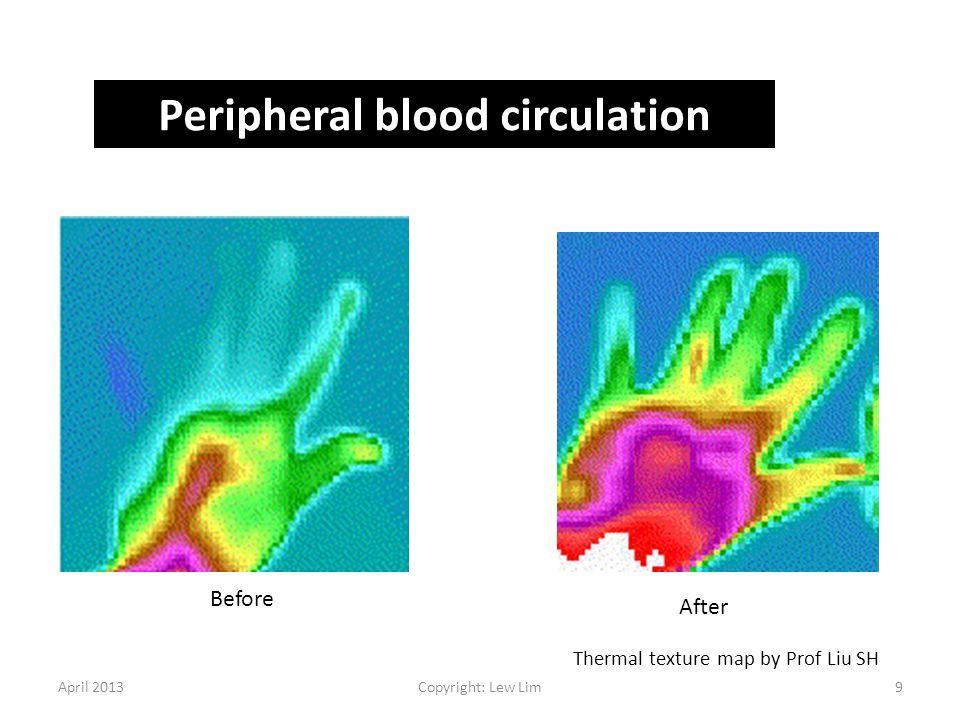 Peripheral blood circulation