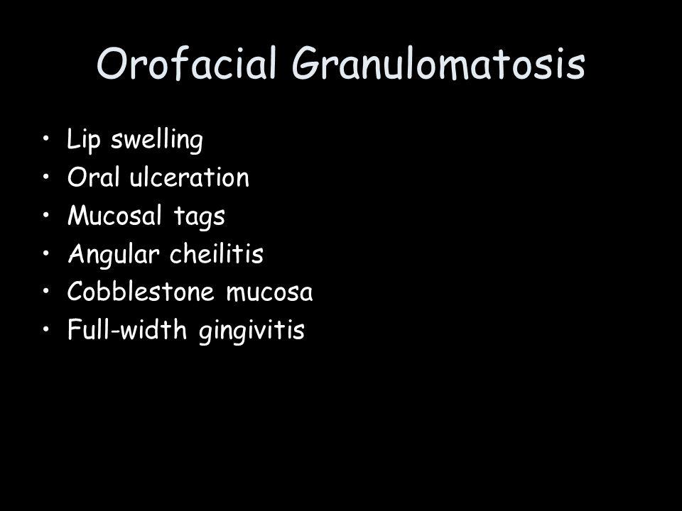 Orofacial Granulomatosis