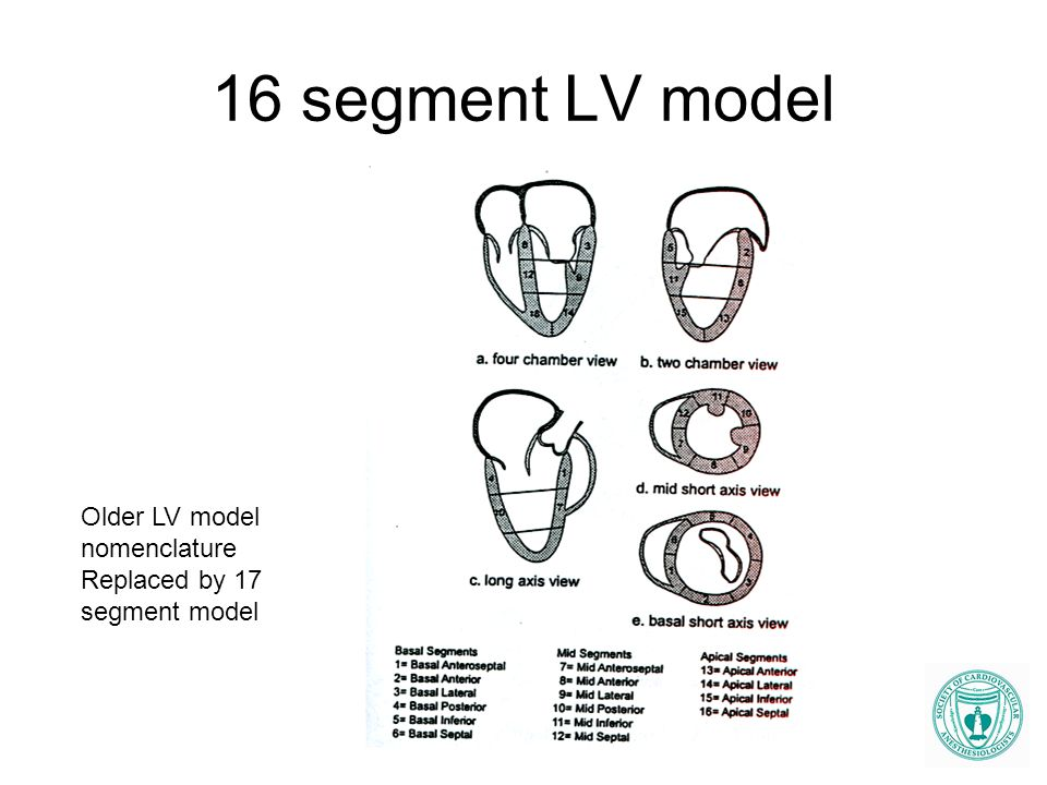 16 segment LV model Older LV model nomenclature