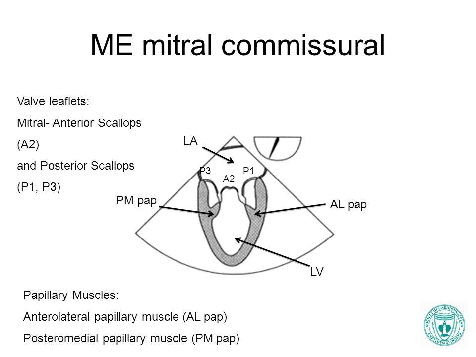 ME mitral commissural Valve leaflets: Mitral- Anterior Scallops (A2)