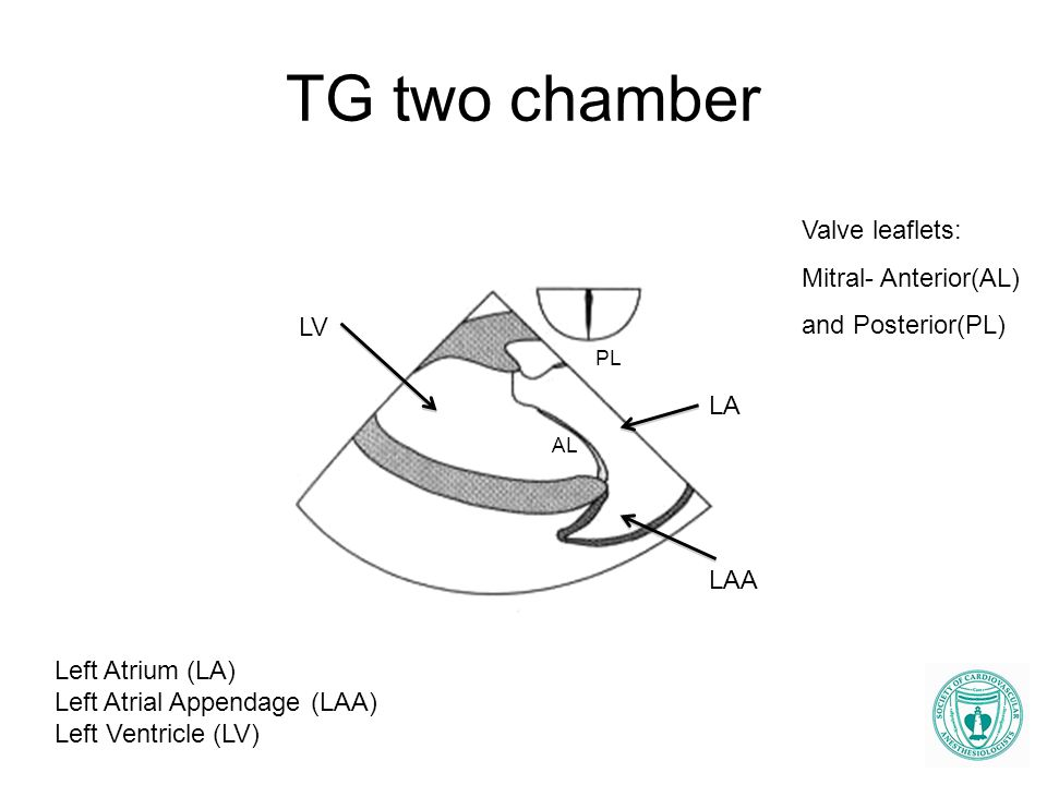 TG two chamber Valve leaflets: Mitral- Anterior(AL) and Posterior(PL)