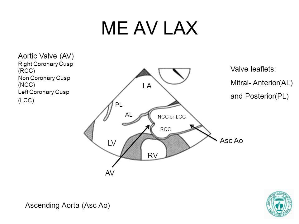 ME AV LAX Aortic Valve (AV) Valve leaflets: Mitral- Anterior(AL)