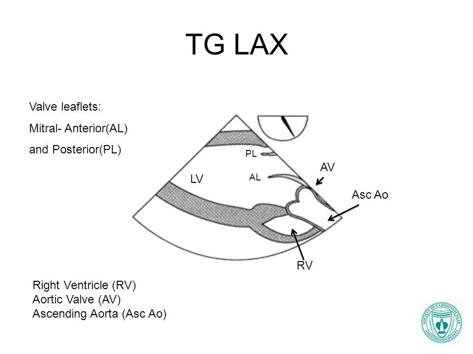 TG LAX Valve leaflets: Mitral- Anterior(AL) and Posterior(PL) AV LV