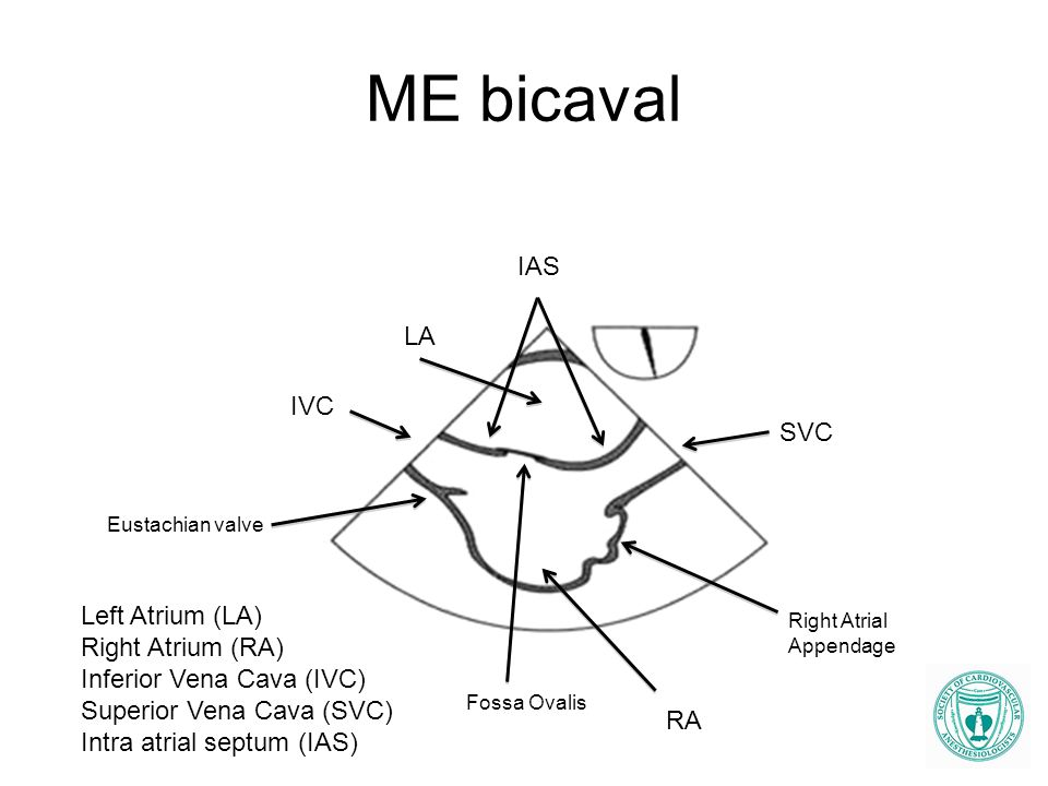 ME bicaval IAS LA IVC SVC Left Atrium (LA) Right Atrium (RA)