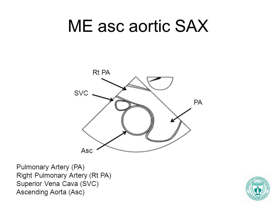ME asc aortic SAX Rt PA SVC PA Asc Pulmonary Artery (PA)