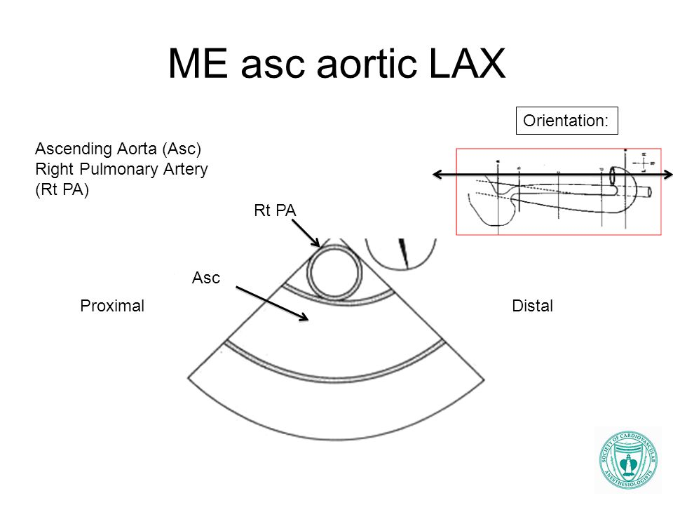 ME asc aortic LAX Orientation: Ascending Aorta (Asc)