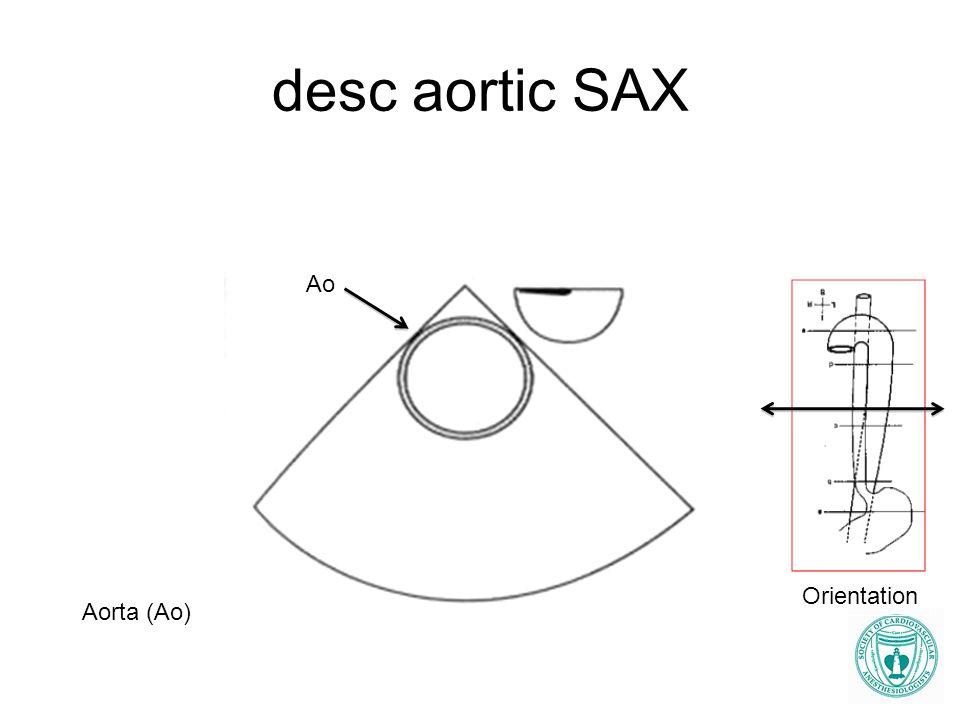 desc aortic SAX Ao Orientation Aorta (Ao)