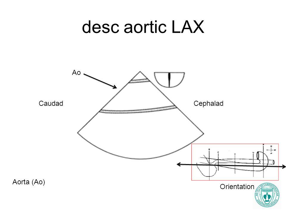 desc aortic LAX Ao Caudad Cephalad Aorta (Ao) Orientation