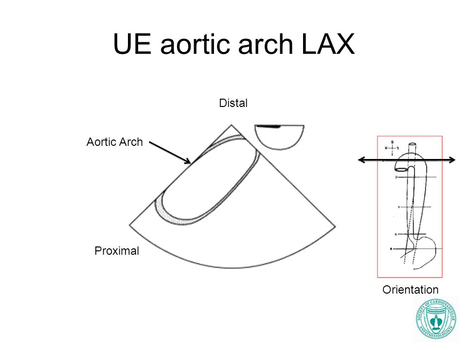 UE aortic arch LAX Distal Aortic Arch Proximal Orientation