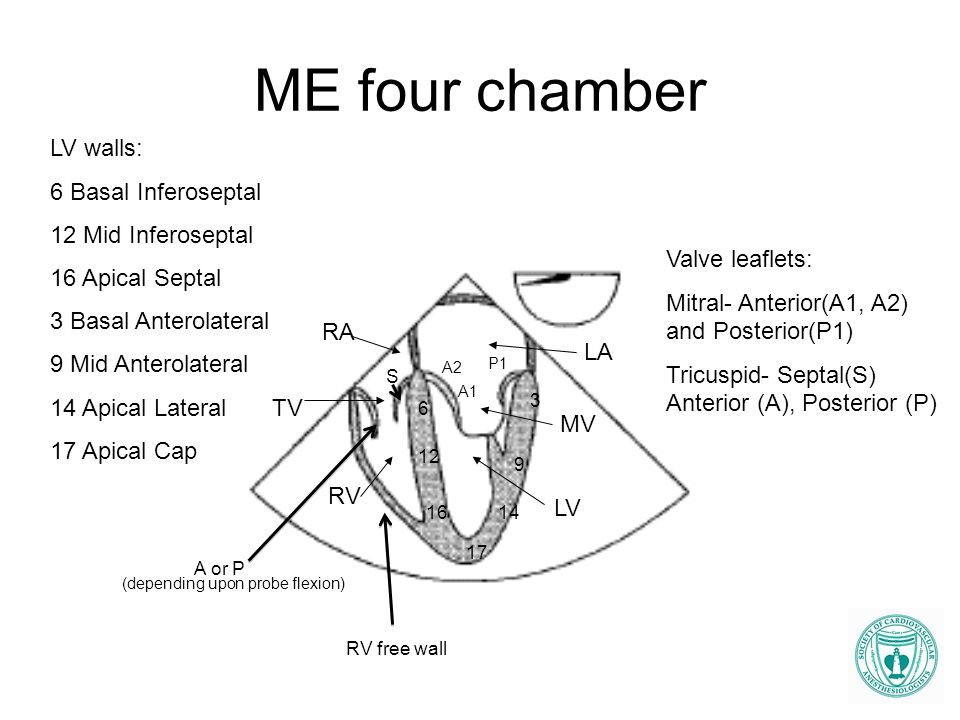 ME four chamber LV walls: 6 Basal Inferoseptal 12 Mid Inferoseptal