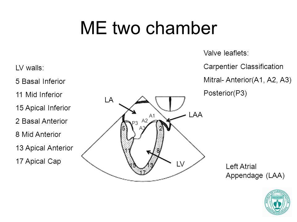 ME two chamber Valve leaflets: Carpentier Classification