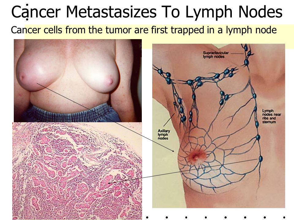 Cancer Metastasizes To Lymph Nodes
