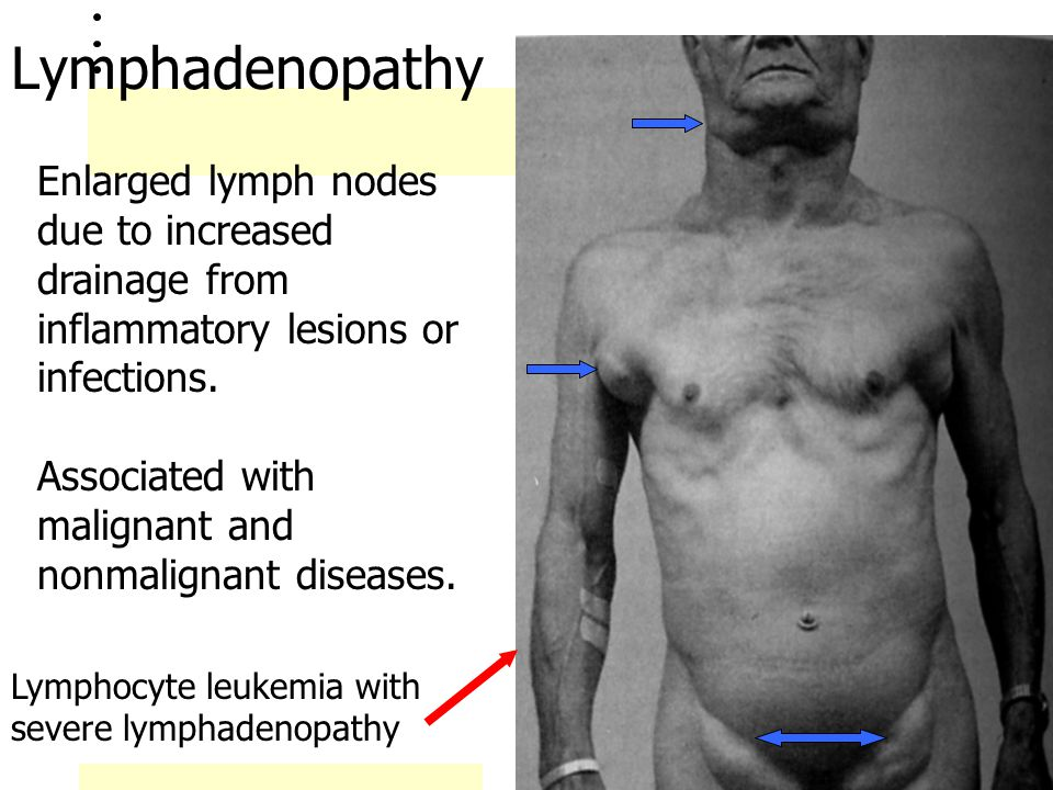 Lymphadenopathy Enlarged lymph nodes due to increased drainage from inflammatory lesions or infections.