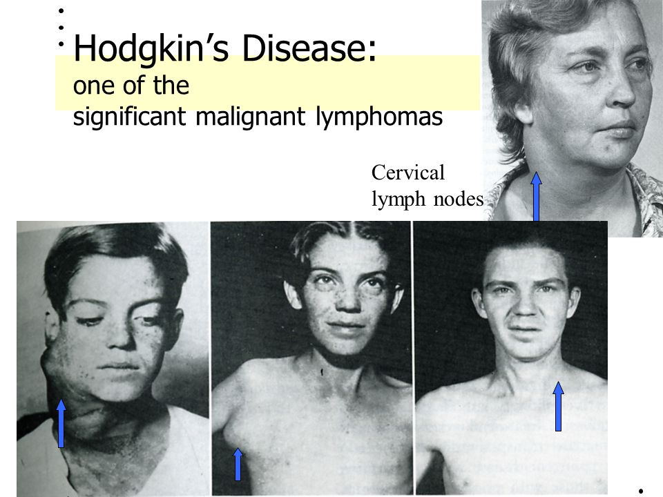 Hodgkin's Disease: one of the significant malignant lymphomas