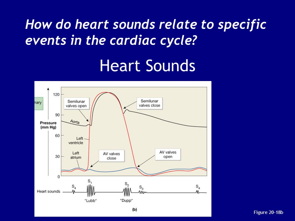 How do heart sounds relate to specific events in the cardiac cycle