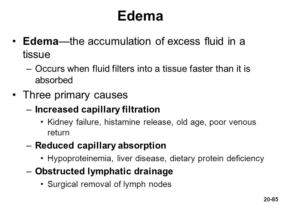 Edema Edema—the accumulation of excess fluid in a tissue