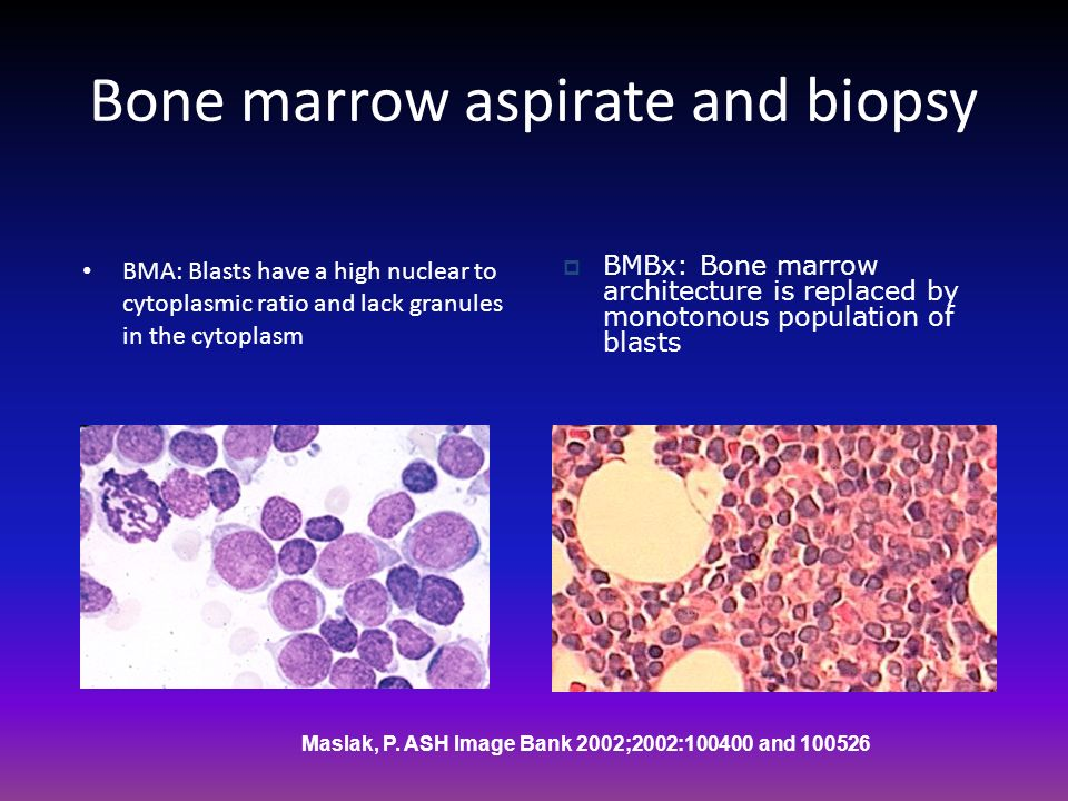 Bone marrow aspirate and biopsy