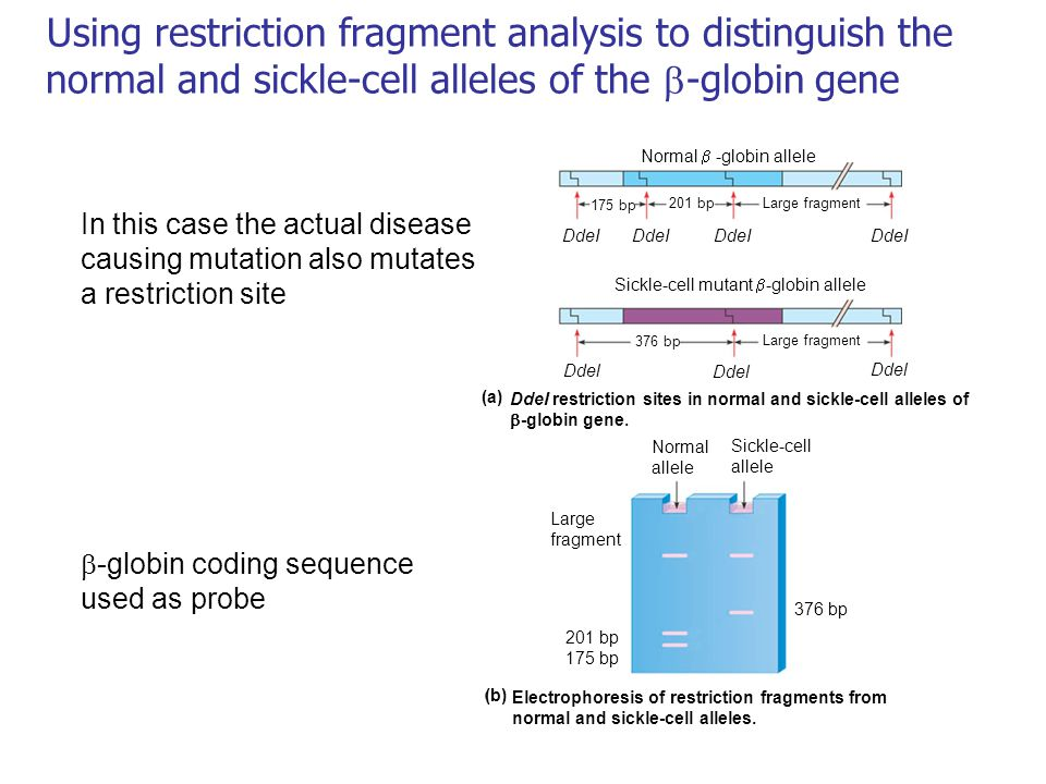 Using restriction fragment analysis to distinguish the normal and sickle-cell alleles of the -globin gene