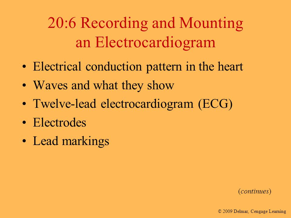 20:6 Recording and Mounting an Electrocardiogram