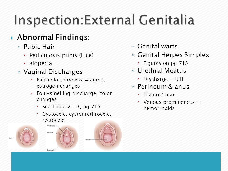 Inspection:External Genitalia