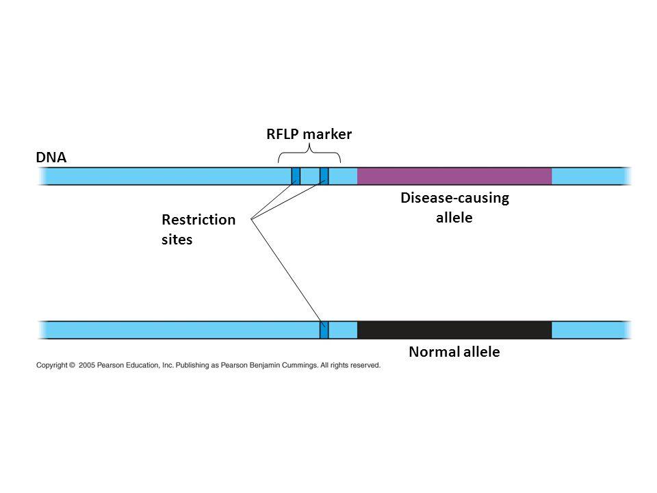 RFLP marker DNA Disease-causing allele Restriction sites Normal allele