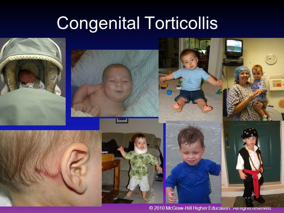 Congenital Torticollis