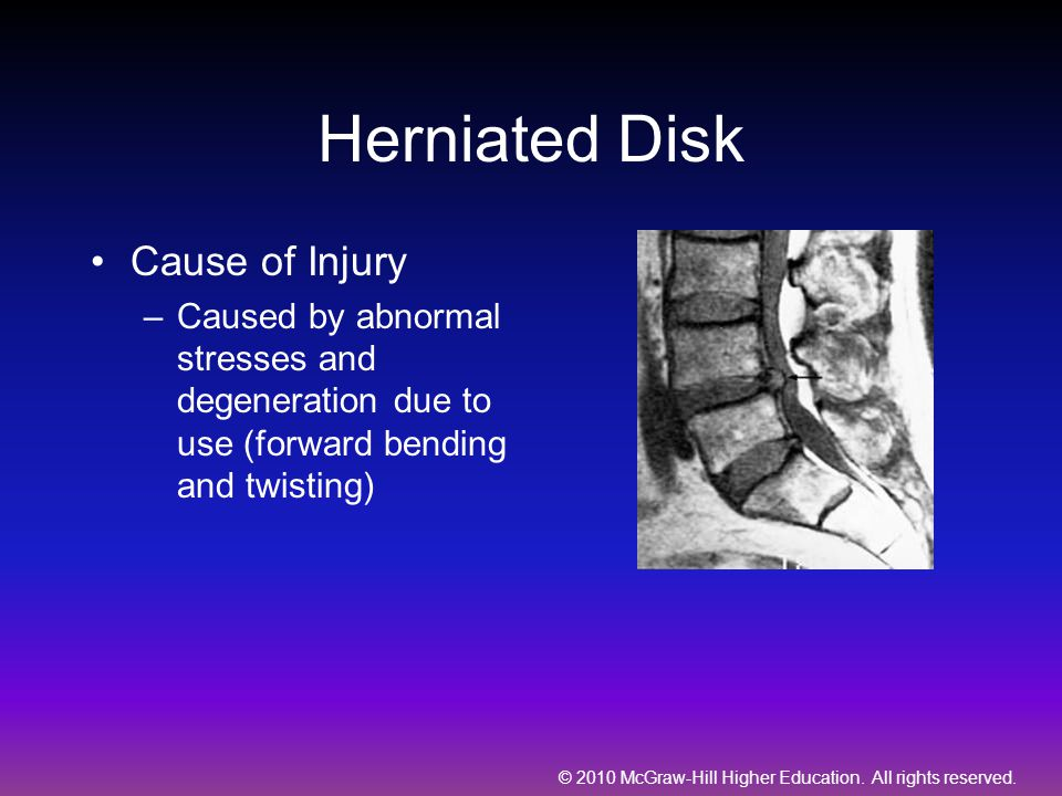 Herniated Disk Cause of Injury