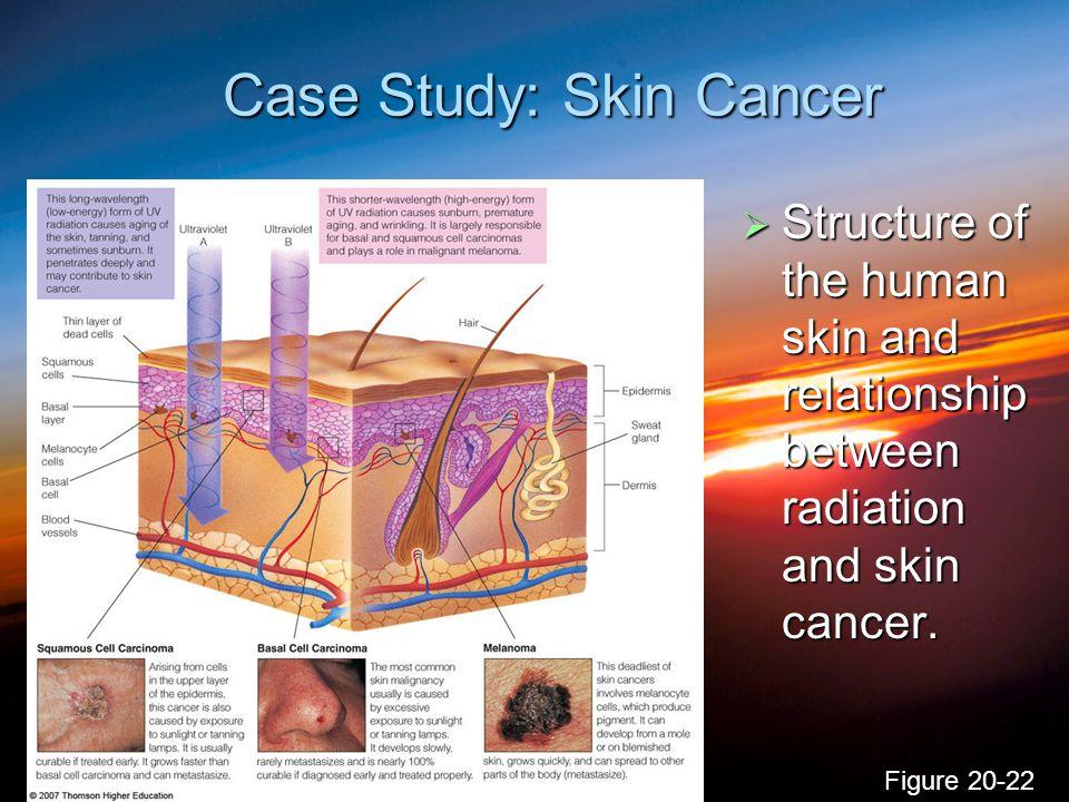 Case Study: Skin Cancer